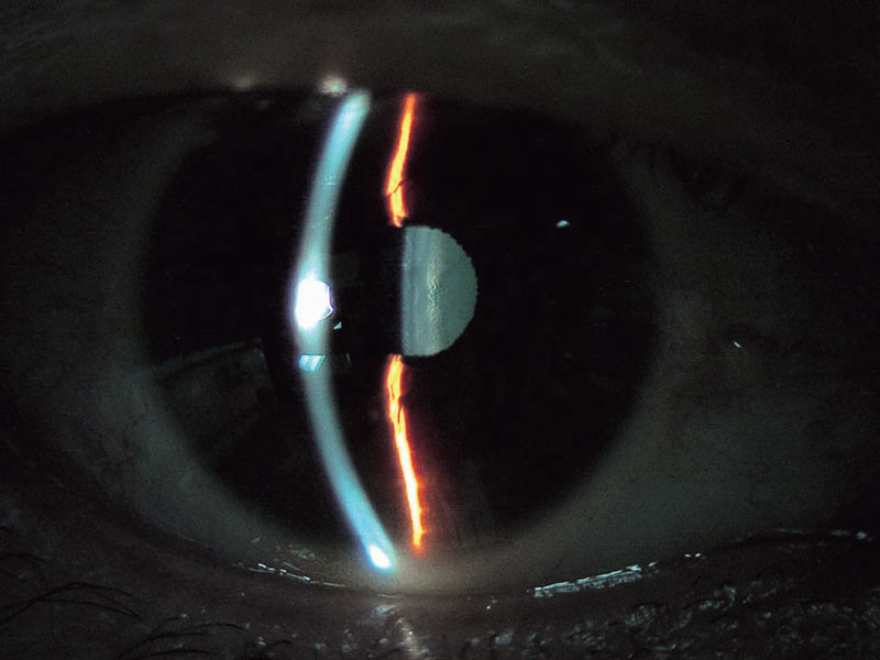 Background Illumination Takagi Ophthalmic Instruments